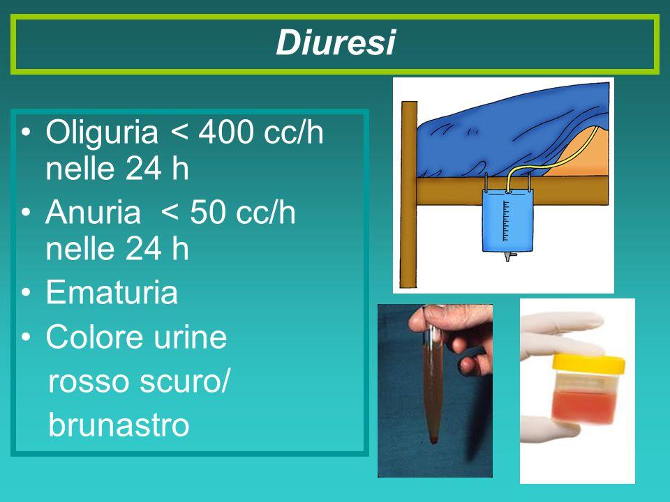 Oliguria < 400 cc/h nelle 24 h Anuria < 50 cc/h nelle 24 h Ematuria Colore urine rosso scuro/ brunastro Diuresi