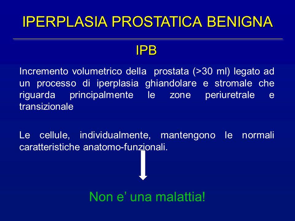 IPERPLASIA PROSTATICA BENIGNA Incremento volumetrico della prostata (>30 ml) legato ad un processo di iperplasia ghiandolare e stromale che riguarda p