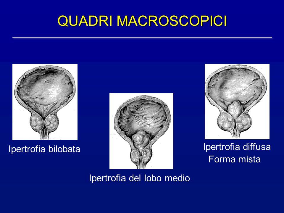 QUADRI MACROSCOPICI Ipertrofia bilobata Ipertrofia del lobo medio Ipertrofia diffusa Forma mista