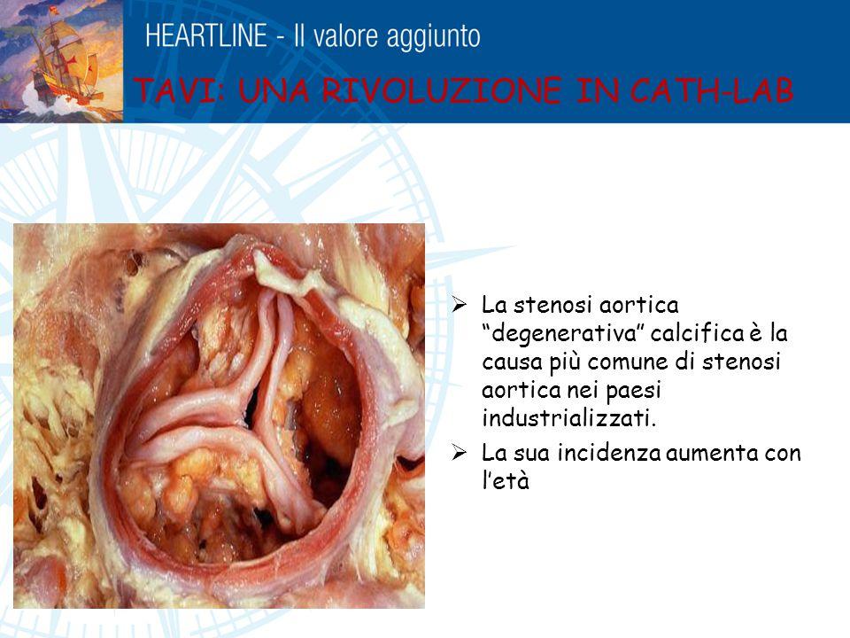 """ La stenosi aortica """"degenerativa"""" calcifica è la causa più comune di stenosi aortica nei paesi industrializzati.  La sua incidenza aumenta con l'et"""