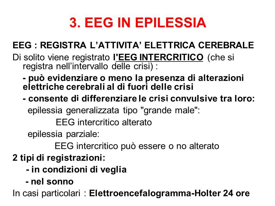 3. EEG IN EPILESSIA EEG : REGISTRA L'ATTIVITA' ELETTRICA CEREBRALE Di solito viene registrato l'EEG INTERCRITICO (che si registra nell'intervallo dell