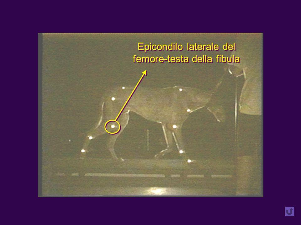 Epicondilo laterale del femore-testa della fibula Epicondilo laterale del femore-testa della fibula