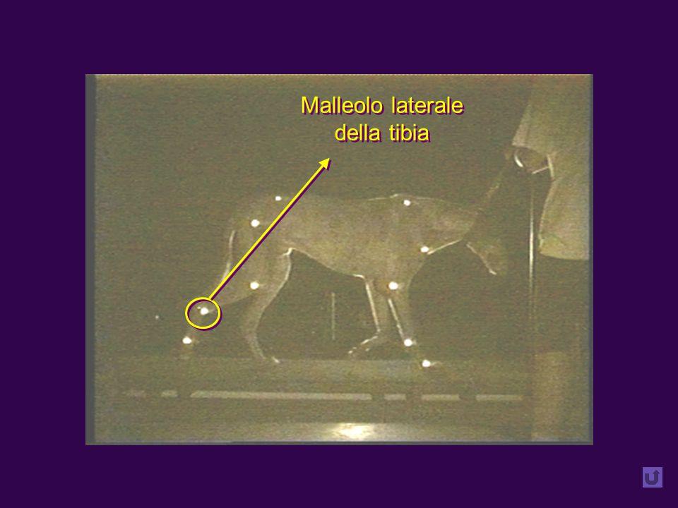 Malleolo laterale della tibia Malleolo laterale della tibia