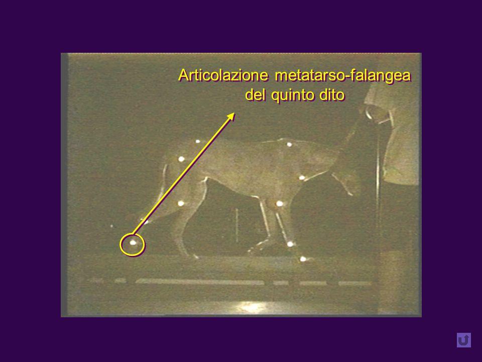 Articolazione metatarso-falangea del quinto dito Articolazione metatarso-falangea del quinto dito