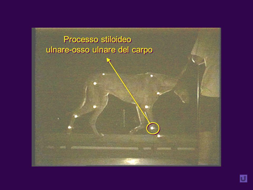 Processo stiloideo ulnare-osso ulnare del carpo Processo stiloideo ulnare-osso ulnare del carpo