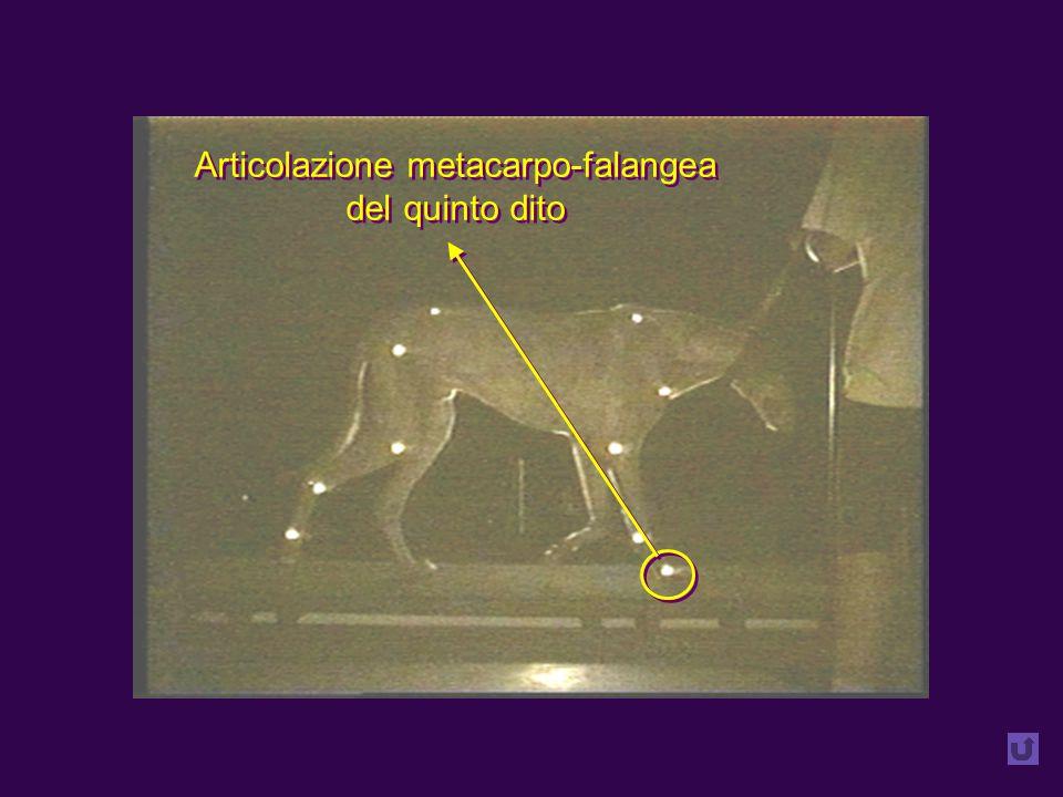 Articolazione metacarpo-falangea del quinto dito Articolazione metacarpo-falangea del quinto dito