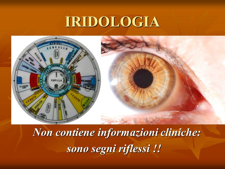 IRIDOLOGIA Non contiene informazioni cliniche: Non contiene informazioni cliniche: sono segni riflessi !! sono segni riflessi !!