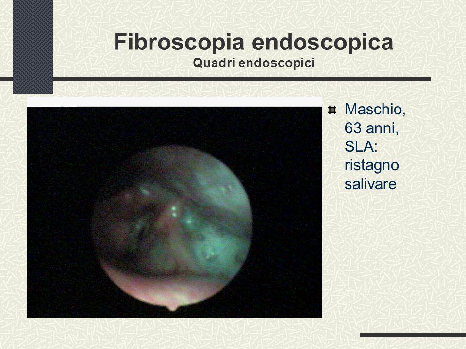 Fibroscopia endoscopica Quadri endoscopici Maschio, 63 anni, SLA: ristagno salivare