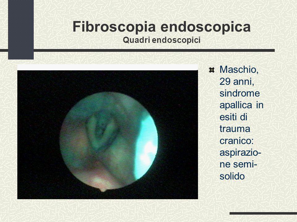 Fibroscopia endoscopica Quadri endoscopici Maschio, 29 anni, sindrome apallica in esiti di trauma cranico: aspirazio- ne semi- solido