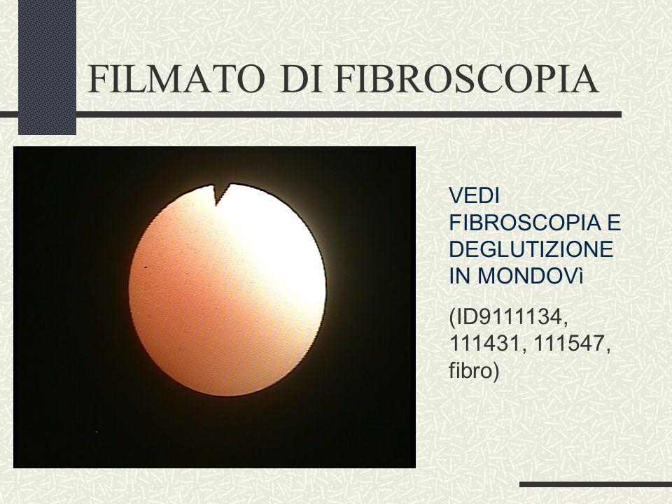 FILMATO DI FIBROSCOPIA VEDI FIBROSCOPIA E DEGLUTIZIONE IN MONDOVì (ID9111134, 111431, 111547, fibro)