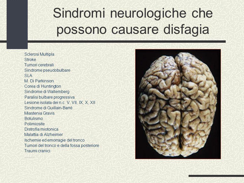 Sindromi neurologiche che possono causare disfagia Sclerosi Multipla Stroke Tumori cerebrali Sindrome pseudobulbare SLA M. Di Parkinson Corea di Hunti
