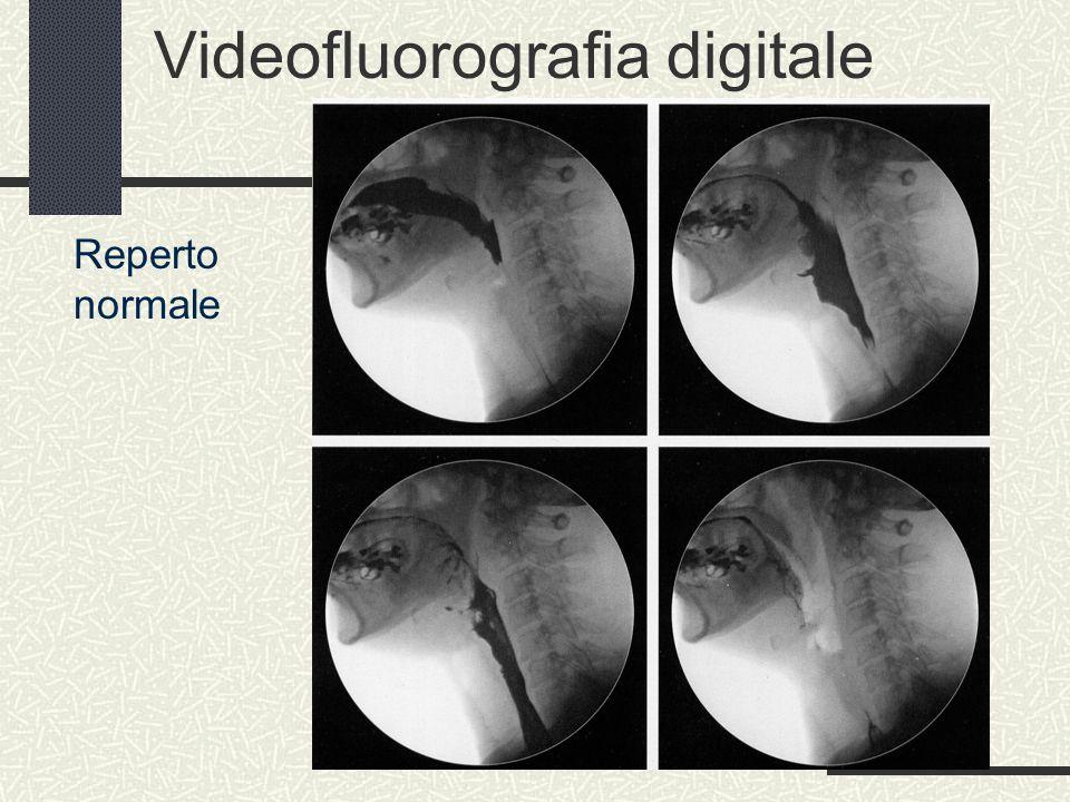 Videofluorografia digitale Reperto normale