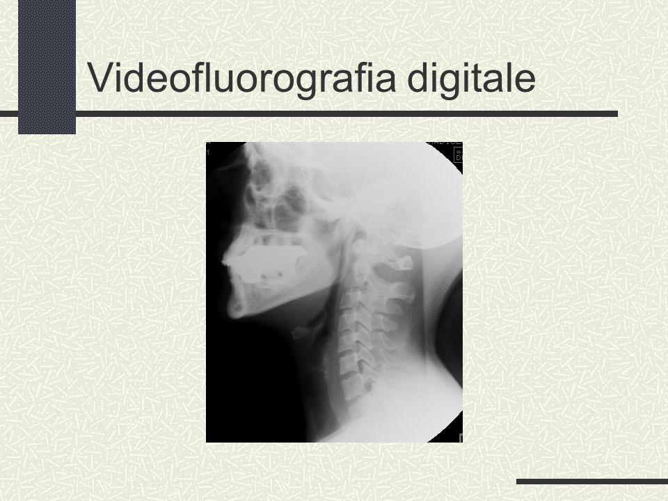 Videofluorografia digitale