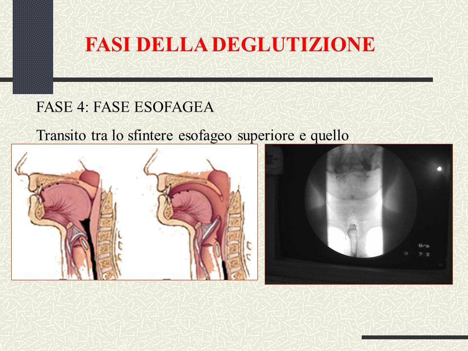 FASI DELLA DEGLUTIZIONE FASE 4: FASE ESOFAGEA Transito tra lo sfintere esofageo superiore e quello inferiore (durata: 8-20 sec.)