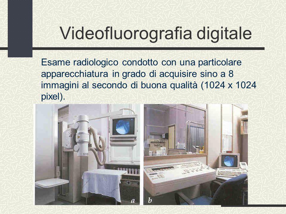 Videofluorografia digitale Esame radiologico condotto con una particolare apparecchiatura in grado di acquisire sino a 8 immagini al secondo di buona qualità (1024 x 1024 pixel).