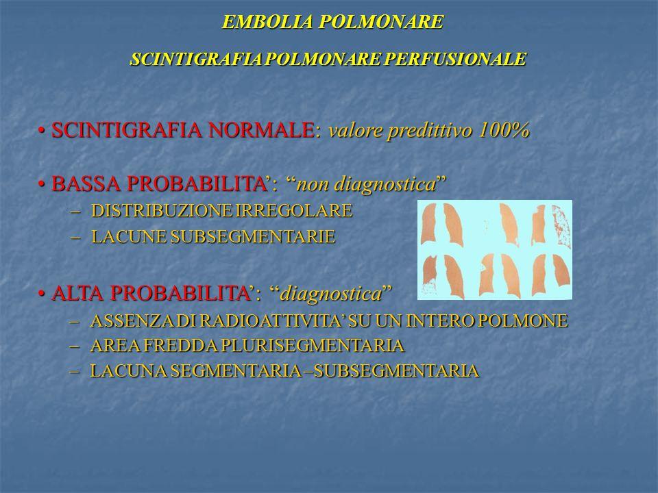 SCINTIGRAFIA POLMONARE PERFUSIONALE EMBOLIA POLMONARE SCINTIGRAFIA NORMALE: valore predittivo 100%SCINTIGRAFIA NORMALE: valore predittivo 100% BASSA P