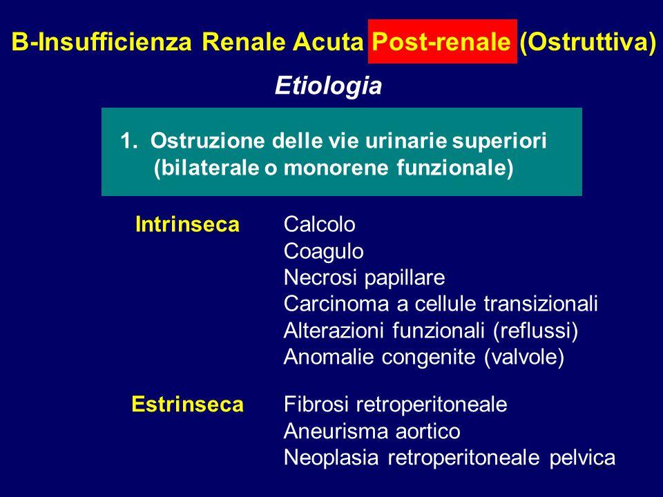 21 B-Insufficienza Renale Acuta Post-renale (Ostruttiva) Etiologia 1. Ostruzione delle vie urinarie superiori (bilaterale o monorene funzionale) Intri