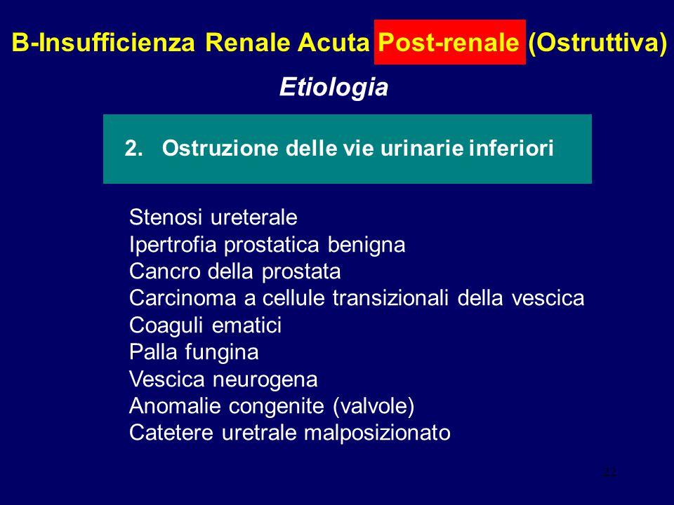 22 B-Insufficienza Renale Acuta Post-renale (Ostruttiva) Etiologia 2. Ostruzione delle vie urinarie inferiori Stenosi ureterale Ipertrofia prostatica