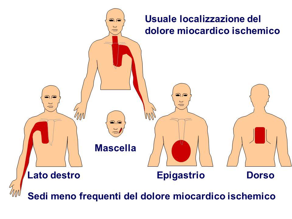 Usuale localizzazione del dolore miocardico ischemico Sedi meno frequenti del dolore miocardico ischemico Lato destro Mascella EpigastrioDorso