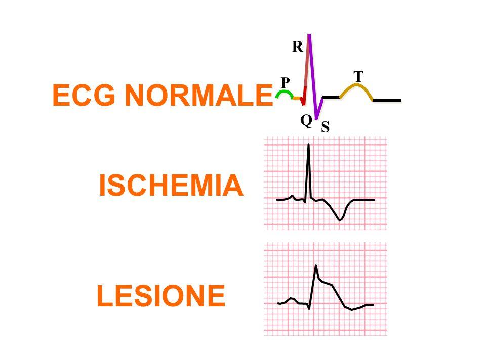 ISCHEMIA LESIONE ECG NORMALE P Q R S T