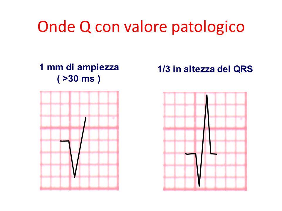 Onde Q con valore patologico 1 mm di ampiezza ( >30 ms ) 1/3 in altezza del QRS