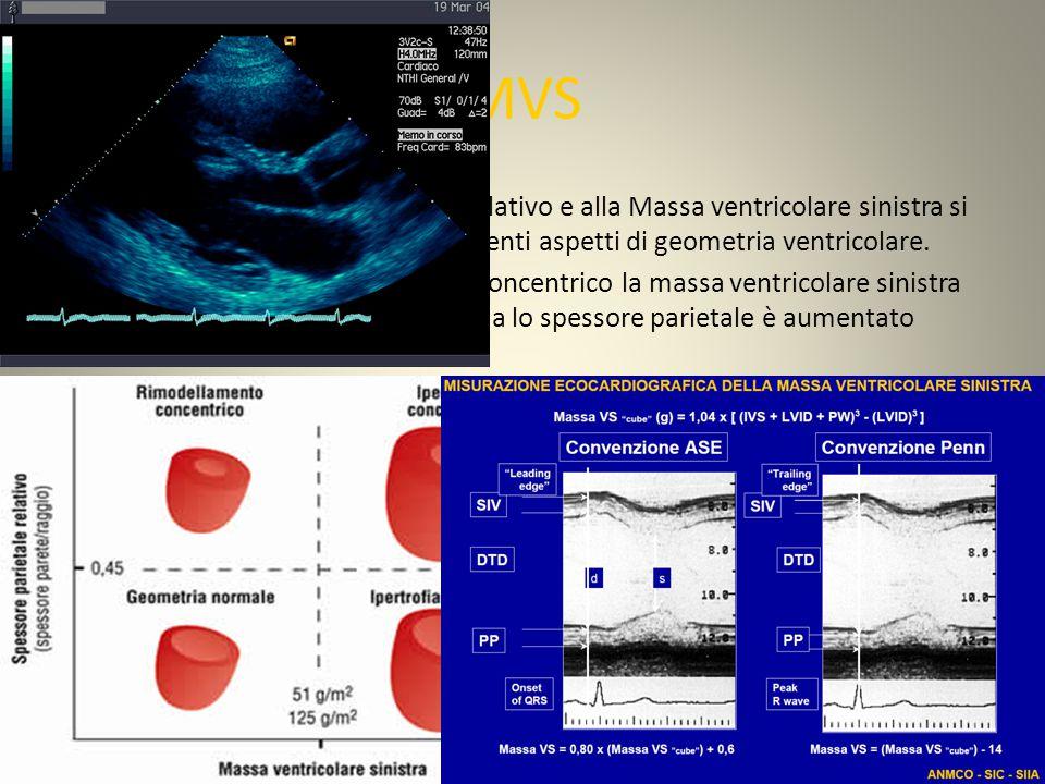 MVS In base allo spessore parietale relativo e alla Massa ventricolare sinistra si possono osservare quattro differenti aspetti di geometria ventricolare.