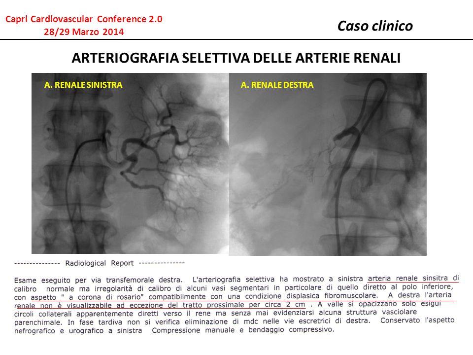 Caso clinico ARTERIOGRAFIA SELETTIVA DELLE ARTERIE RENALI A. RENALE SINISTRAA. RENALE DESTRA Capri Cardiovascular Conference 2.0 28/29 Marzo 2014