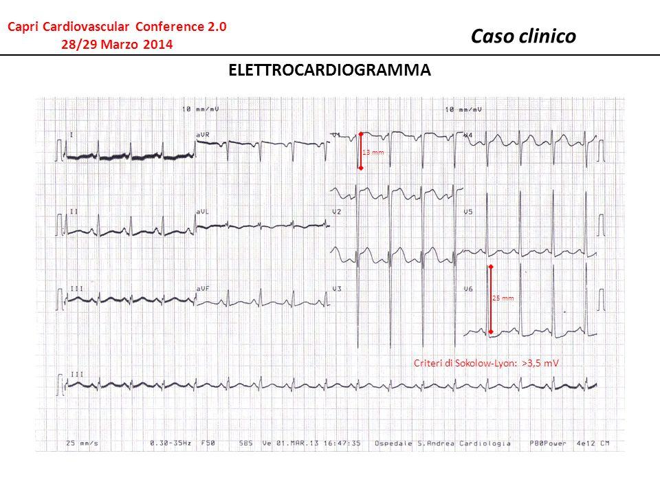 Caso clinico ELETTROCARDIOGRAMMA 13 mm Criteri di Sokolow-Lyon: >3,5 mV 25 mm Capri Cardiovascular Conference 2.0 28/29 Marzo 2014