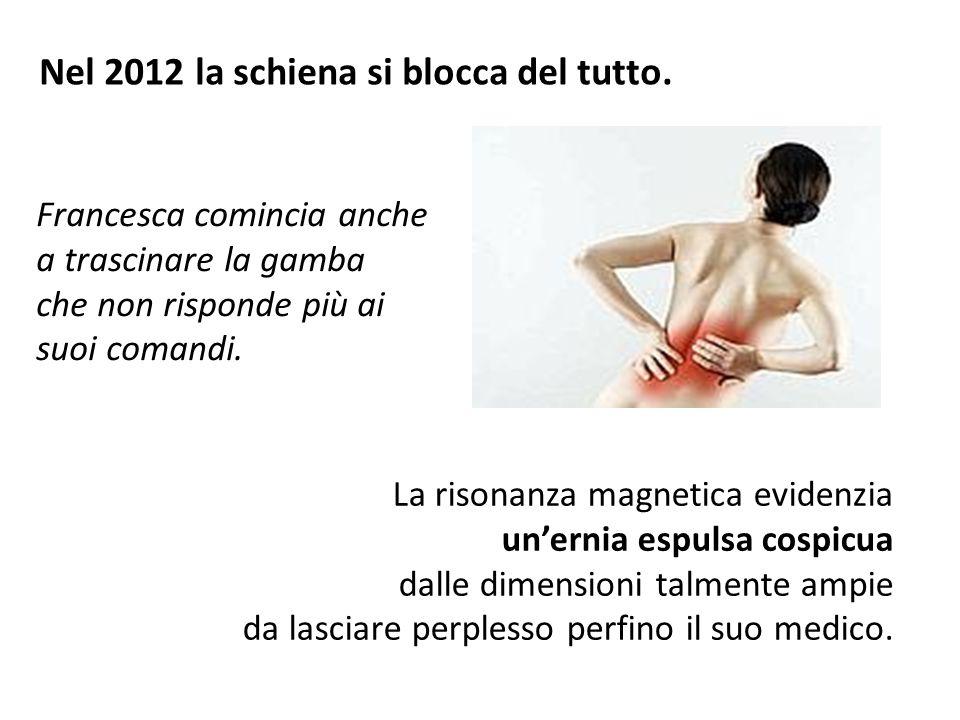 Nel 2012 la schiena si blocca del tutto. La risonanza magnetica evidenzia un'ernia espulsa cospicua dalle dimensioni talmente ampie da lasciare perple