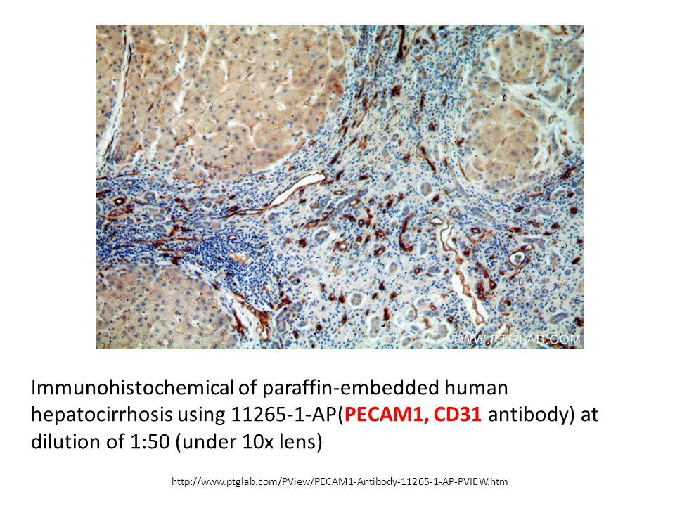 http://www.ptglab.com/PView/PECAM1-Antibody-11265-1-AP-PVIEW.htm Immunohistochemical of paraffin-embedded human hepatocirrhosis using 11265-1-AP(PECAM1, CD31 antibody) at dilution of 1:50 (under 10x lens)