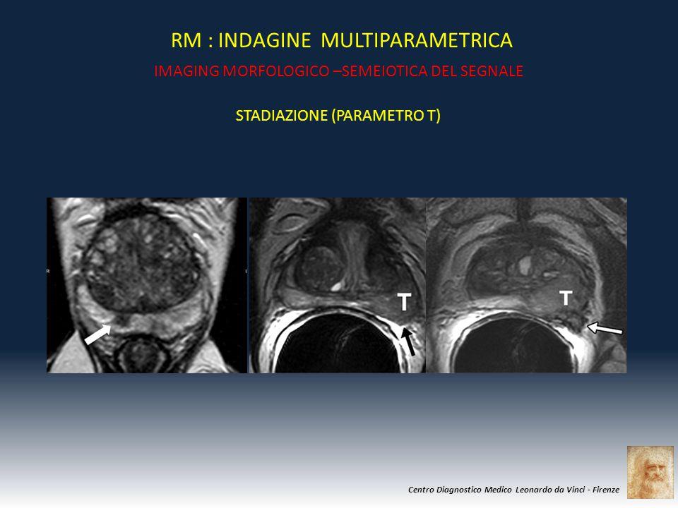 Centro Diagnostico Medico Leonardo da Vinci - Firenze RM : INDAGINE MULTIPARAMETRICA IMAGING MORFOLOGICO –SEMEIOTICA DEL SEGNALE STADIAZIONE (PARAMETR