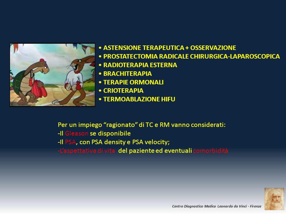 """Centro Diagnostico Medico Leonardo da Vinci - Firenze Per un impiego """"ragionato"""" di TC e RM vanno considerati: -Il Gleason se disponibile -Il PSA, con"""