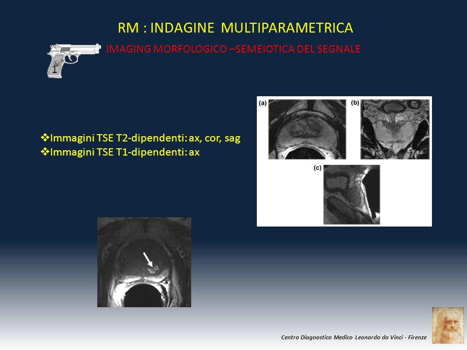 Centro Diagnostico Medico Leonardo da Vinci - Firenze RM : INDAGINE MULTIPARAMETRICA IMAGING MORFOLOGICO –SEMEIOTICA DEL SEGNALE IDENTIFICAZIONE : IPOINTENSITA' DELLA NEOPLASIA IN T2 (zona periferica – 70% dei K) 1