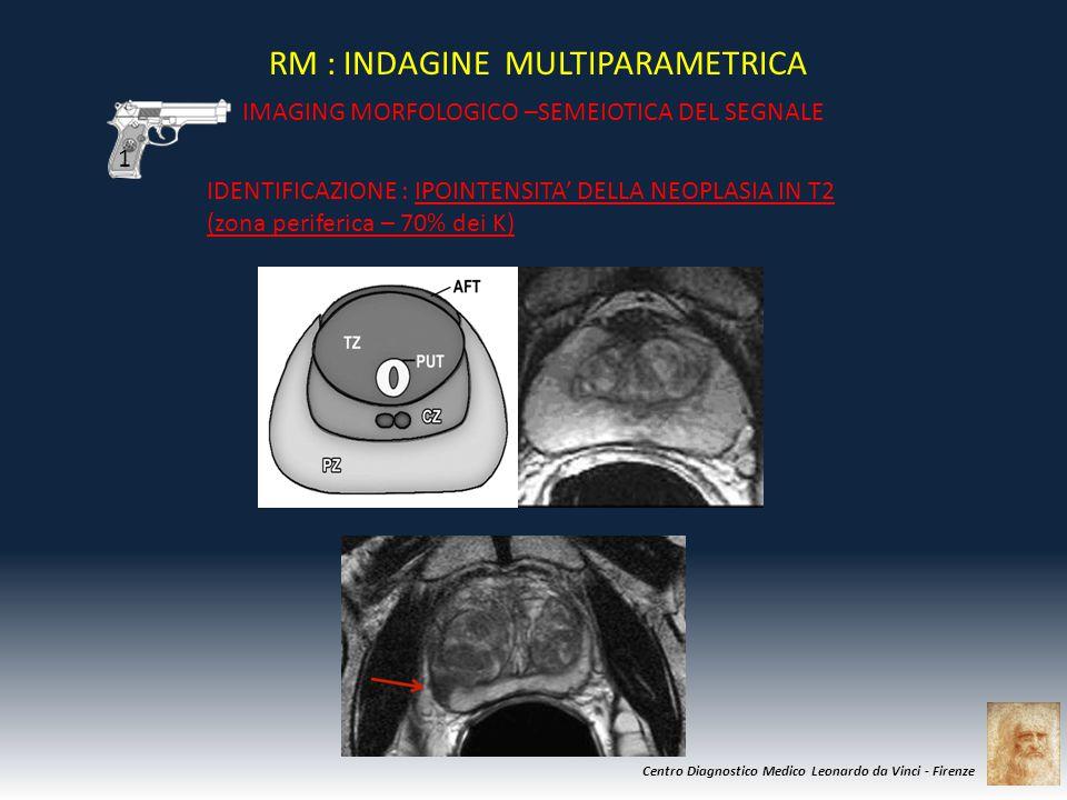 Centro Diagnostico Medico Leonardo da Vinci - Firenze RM : INDAGINE MULTIPARAMETRICA IMAGING MORFOLOGICO –SEMEIOTICA DEL SEGNALE IDENTIFICAZIONE : IPO
