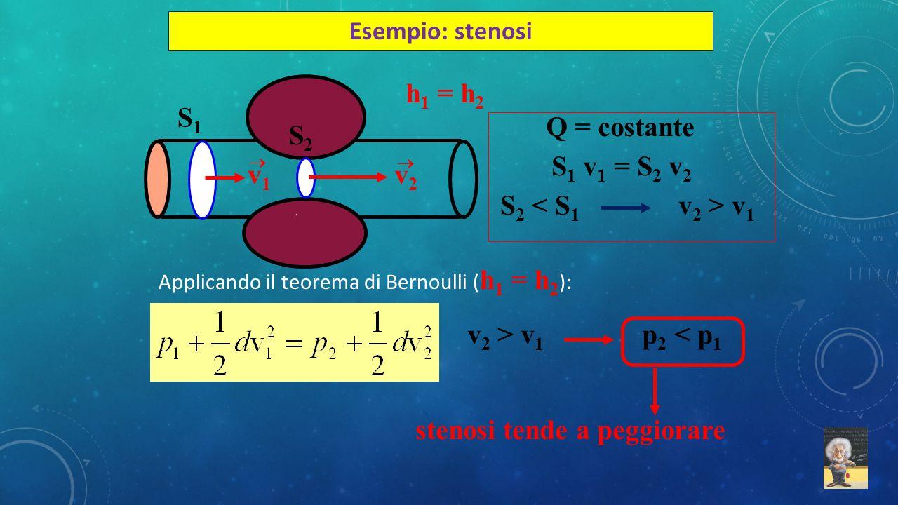 Esempio: stenosi h 1 = h 2 S2S2 S1S1 v1v1  v2v2  Q = costante S 1 v 1 = S 2 v 2 S 2 v 1 v 2 > v 1 p 2 < p 1 stenosi tende a peggiorare Applicando il