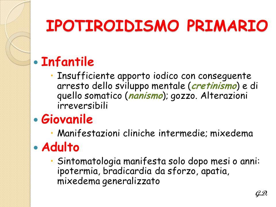 IPOTIROIDISMO PRIMARIO Infantile  Insufficiente apporto iodico con conseguente arresto dello sviluppo mentale (cretinismo) e di quello somatico (nanismo); gozzo.