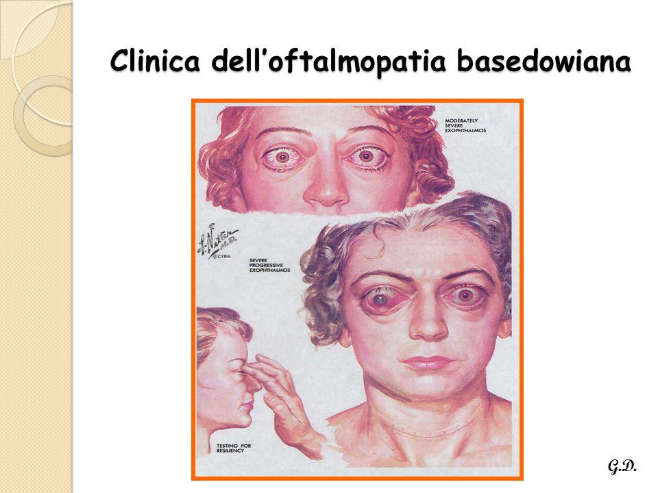 Clinica dell'oftalmopatia basedowiana G.D.