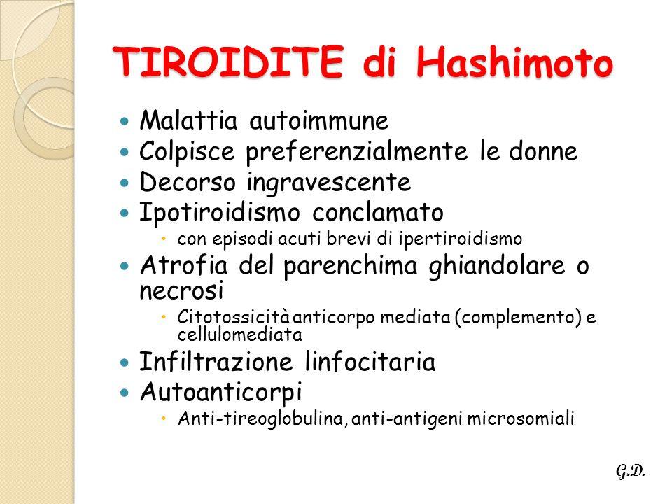 TIROIDITE di Hashimoto Malattia autoimmune Colpisce preferenzialmente le donne Decorso ingravescente Ipotiroidismo conclamato  con episodi acuti brevi di ipertiroidismo Atrofia del parenchima ghiandolare o necrosi  Citotossicità anticorpo mediata (complemento) e cellulomediata Infiltrazione linfocitaria Autoanticorpi  Anti-tireoglobulina, anti-antigeni microsomiali G.D.
