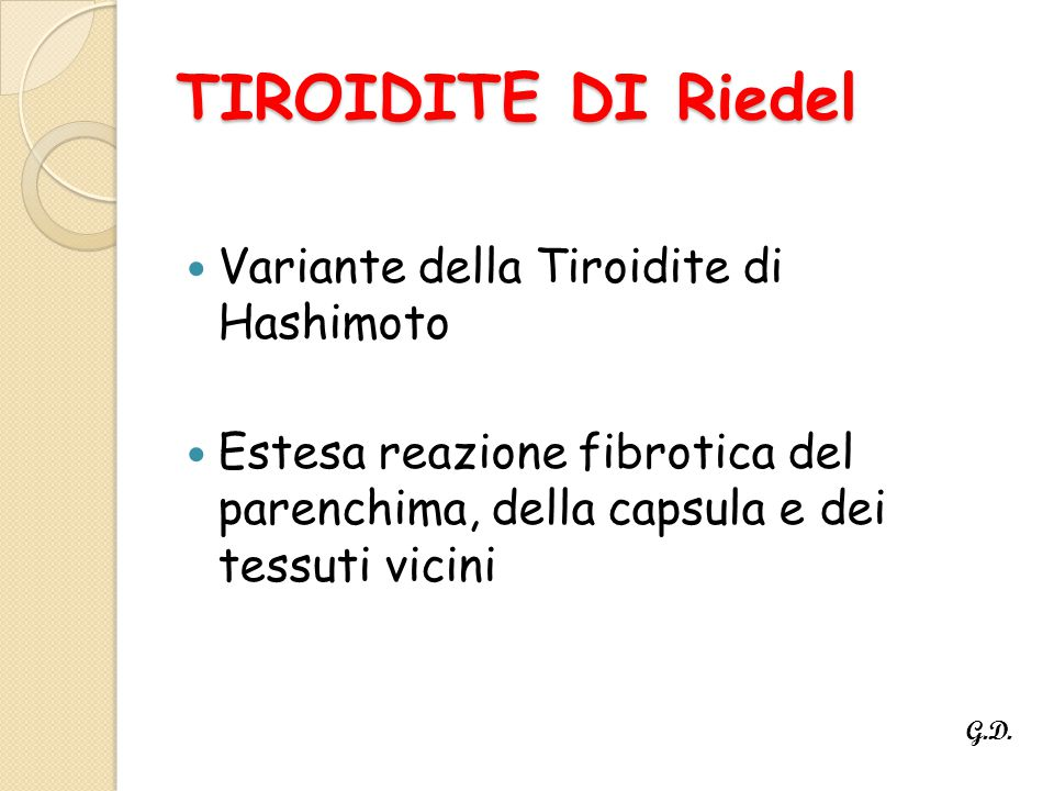 TIROIDITE DI Riedel Variante della Tiroidite di Hashimoto Estesa reazione fibrotica del parenchima, della capsula e dei tessuti vicini G.D.