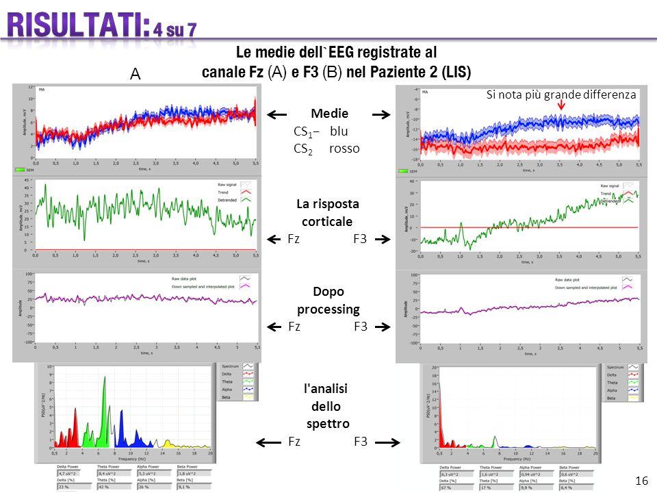 Le medie dell ` EEG registrate al canale Fz (A) e F3 (B) nel Paziente 2 (LIS) A Medie CS 1 − blu CS 2 rosso La risposta corticale Fz F3 Dopo processing Fz F3 l analisi dello spettro Fz F3 16 Si nota più grande differenza