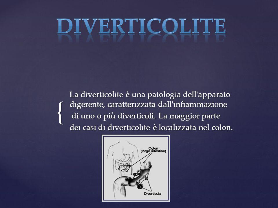 { La diverticolite è una patologia dell'apparato digerente, caratterizzata dall'infiammazione di uno o più diverticoli. La maggior parte di uno o più