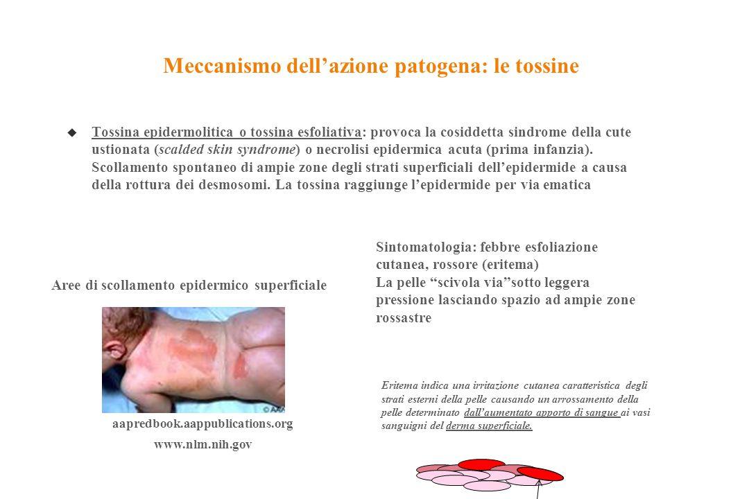 Meccanismo dell'azione patogena: le tossine u Tossina epidermolitica o tossina esfoliativa: provoca la cosiddetta sindrome della cute ustionata (scald
