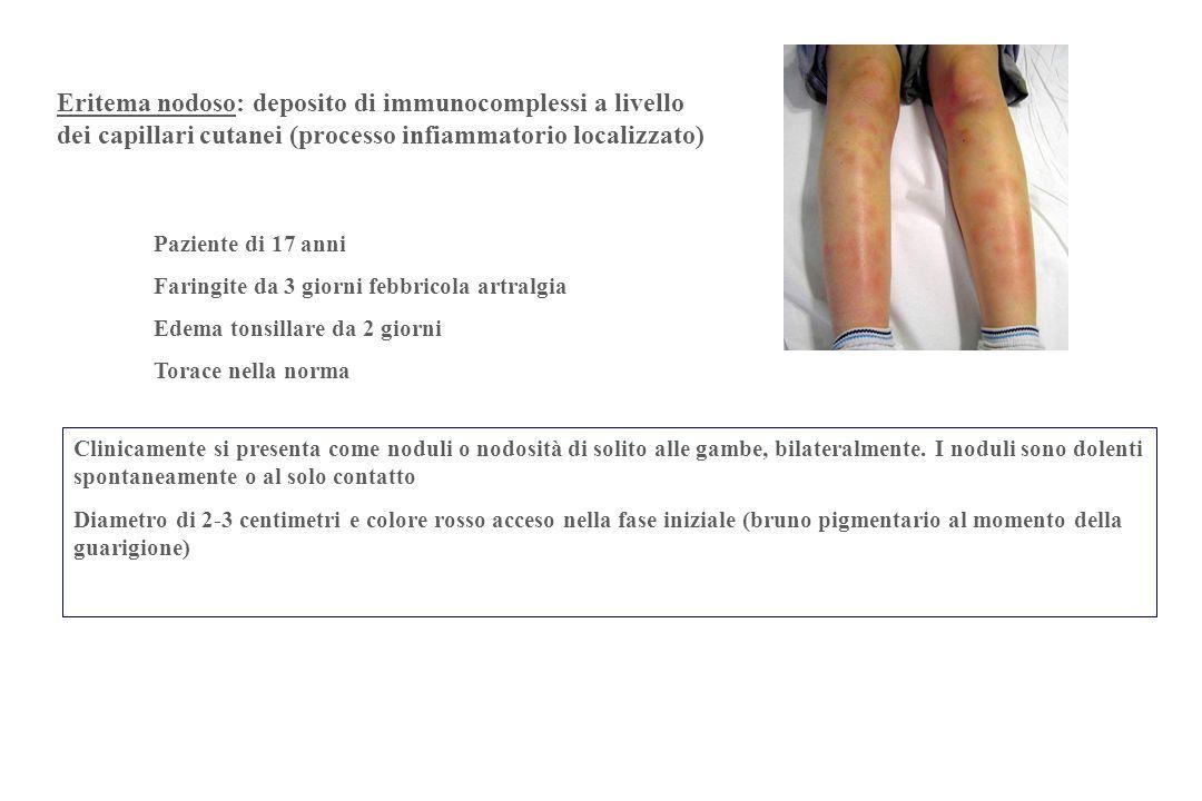 Paziente di 17 anni Faringite da 3 giorni febbricola artralgia Edema tonsillare da 2 giorni Torace nella norma Clinicamente si presenta come noduli o