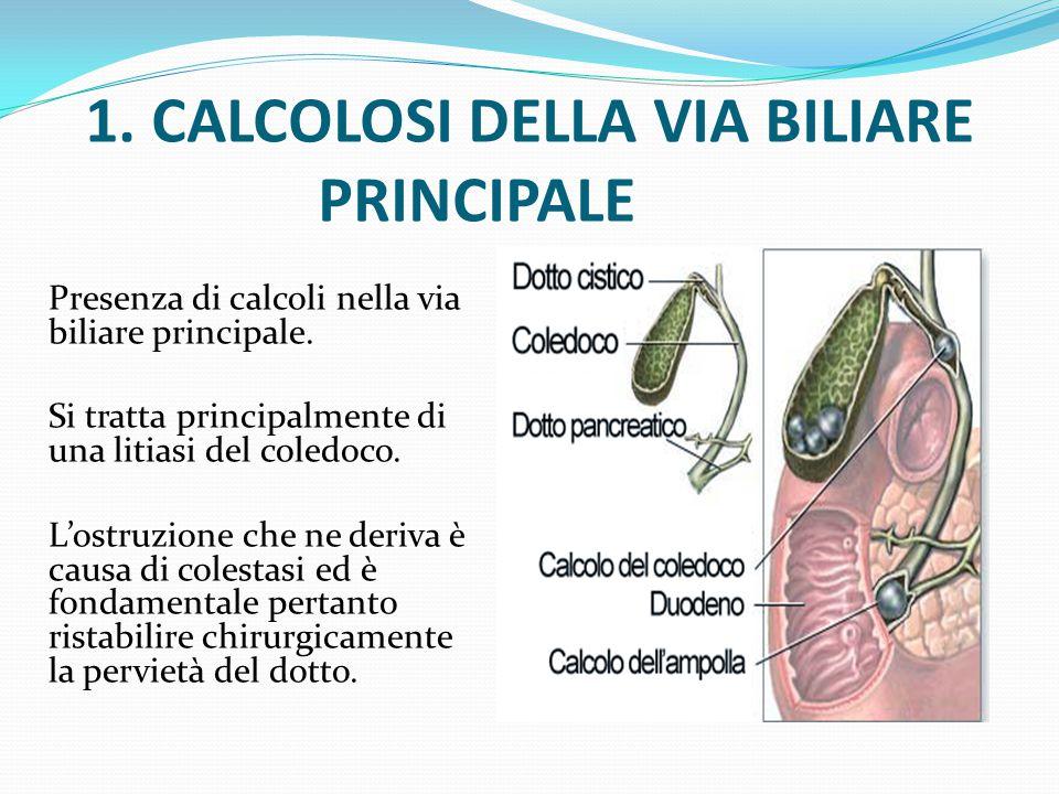 Presenza di calcoli nella via biliare principale. Si tratta principalmente di una litiasi del coledoco. L'ostruzione che ne deriva è causa di colestas