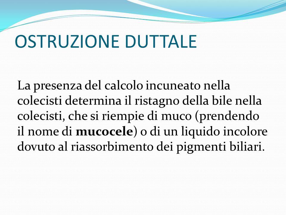 OSTRUZIONE DUTTALE La presenza del calcolo incuneato nella colecisti determina il ristagno della bile nella colecisti, che si riempie di muco (prenden