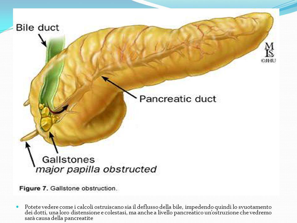 Potete vedere come i calcoli ostruiscano sia il deflusso della bile, impedendo quindi lo svuotamento dei dotti, una loro distensione e colestasi, ma a