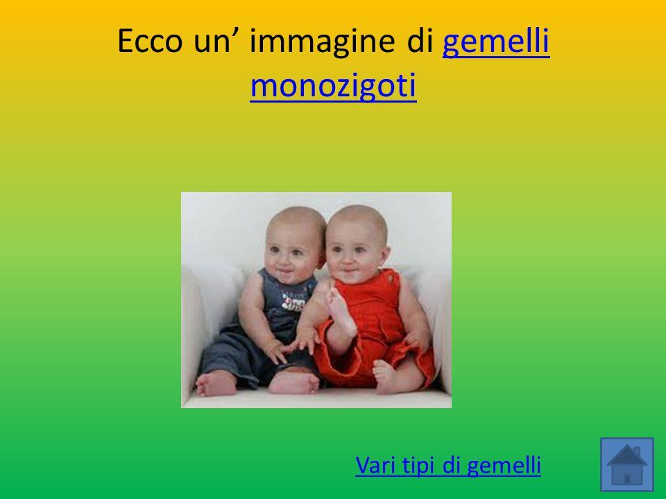Ecco un' immagine di gemelli monozigotigemelli monozigoti Vari tipi di gemelli