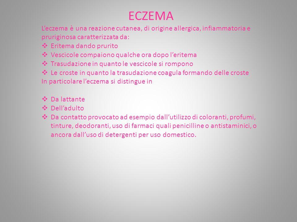 ECZEMA L'eczema è una reazione cutanea, di origine allergica, infiammatoria e pruriginosa caratterizzata da:  Eritema dando prurito  Vescicole compaiono qualche ora dopo l'eritema  Trasudazione in quanto le vescicole si rompono  Le croste in quanto la trasudazione coagula formando delle croste In particolare l'eczema si distingue in  Da lattante  Dell'adulto  Da contatto provocato ad esempio dall'utilizzo di coloranti, profumi, tinture, deodoranti, uso di farmaci quali penicilline o antistaminici, o ancora dall'uso di detergenti per uso domestico.