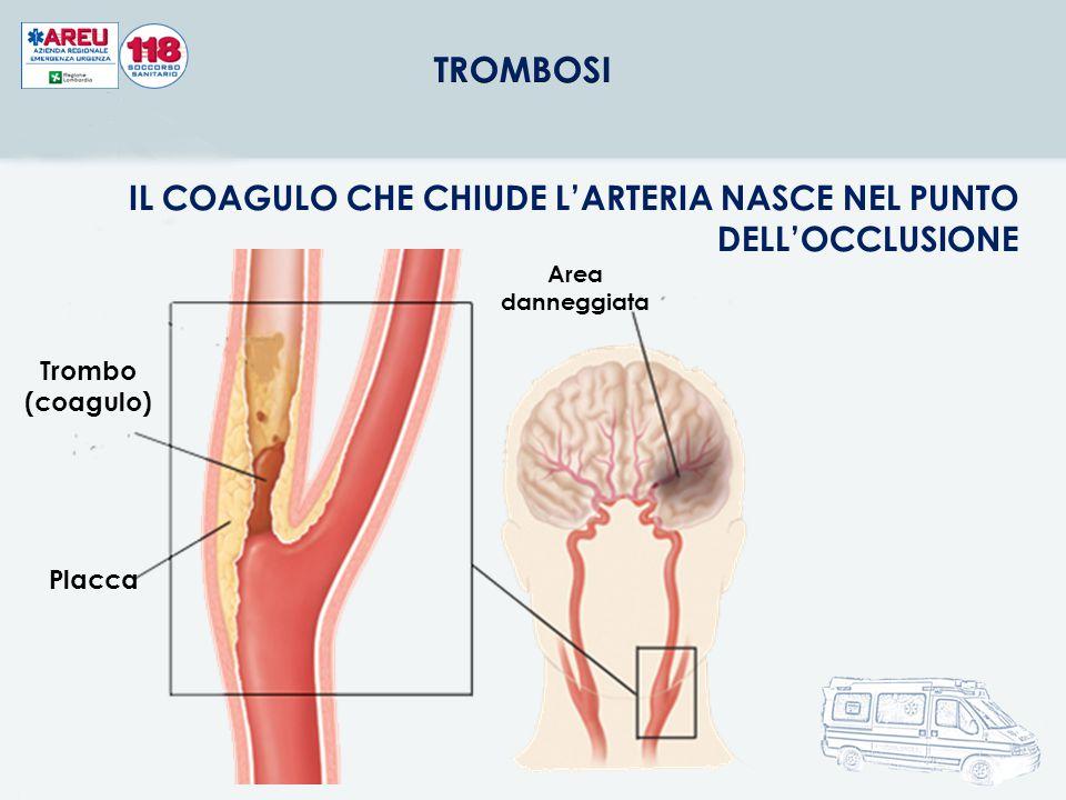 12 Placca Trombo (coagulo) Area danneggiata IL COAGULO CHE CHIUDE L'ARTERIA NASCE NEL PUNTO DELL'OCCLUSIONE