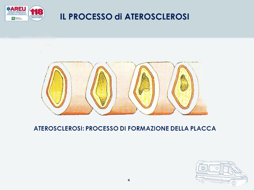 ATEROSCLEROSI: PROCESSO DI FORMAZIONE DELLA PLACCA 4